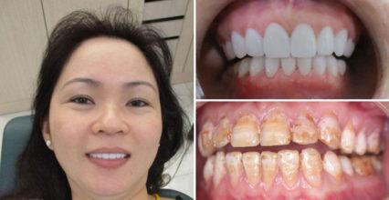 Bít khe hở răng có đẹp, tồn tại được mấy năm?